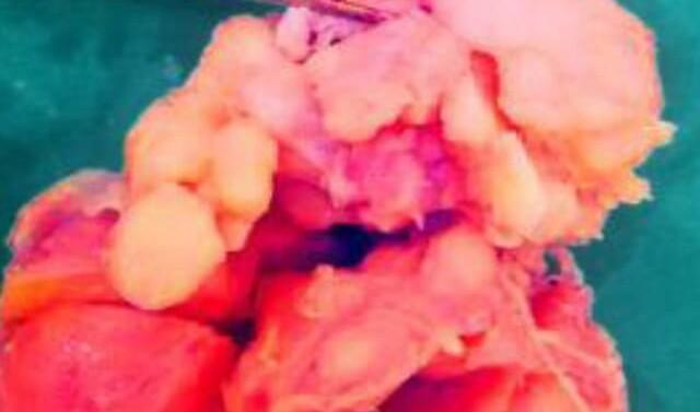 દાહોદના ઝાયડસ હોસ્પિટલમાં 70 વર્ષના વૃદ્વની 210 ગ્રામની પ્રોટેસ્ટની ગાંઠ શસ્ત્રક્રિયા વડે કાઢવામાં આવી…